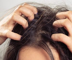 How to Detox Your Hair of Oils, Dandruff, and Chemical Buildup